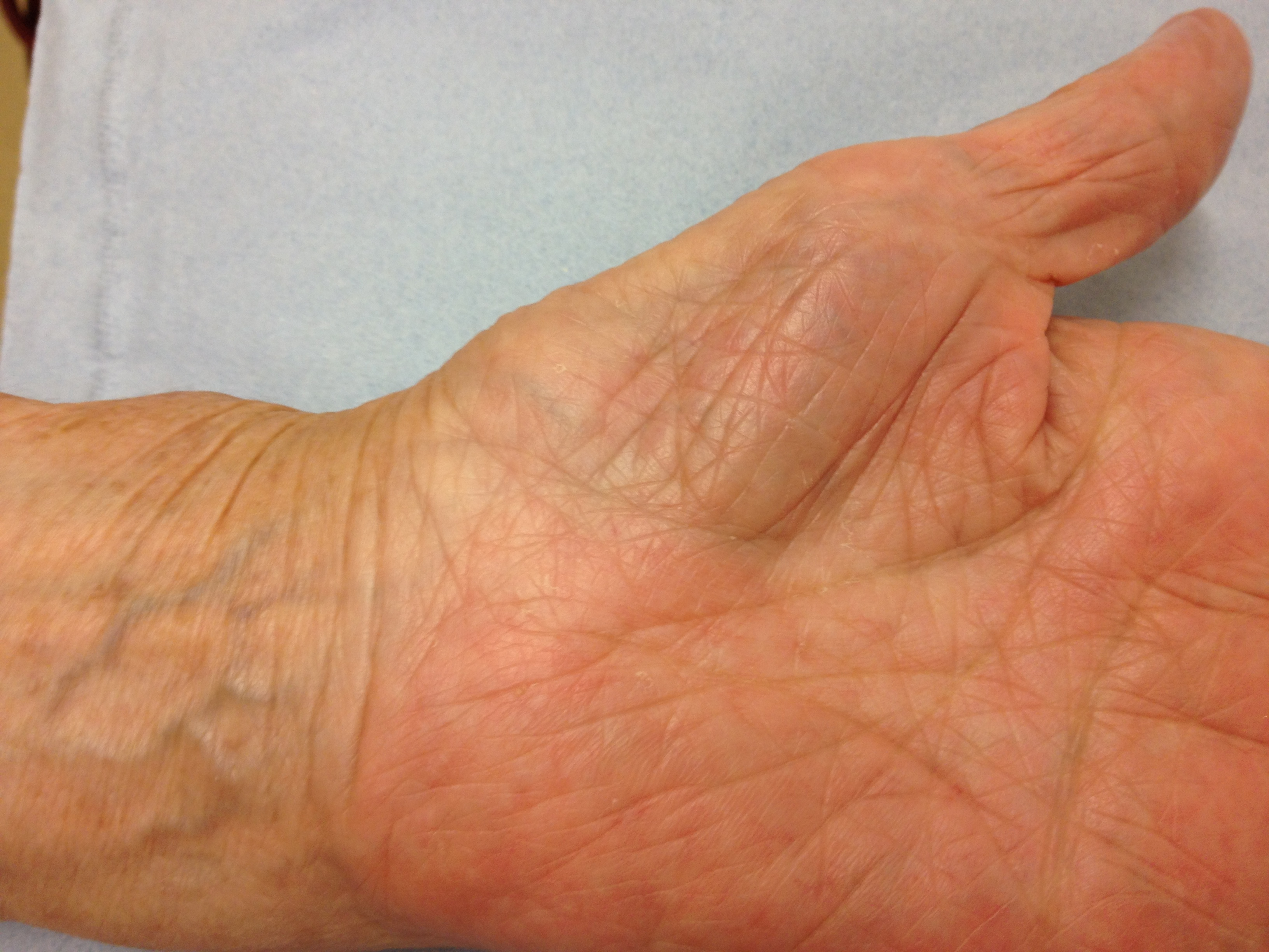 Carpal Tunnel Syndrome - Orthopaedic Surgeon - Shoulder and Upper ...